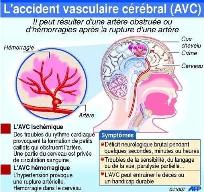 L'Accident Vasculaire Cérébral